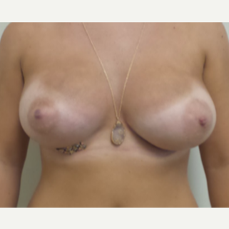 18-24 year old woman treated with Breast Augmentation after 3340734