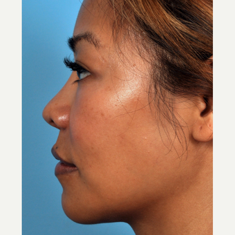 35-44 year old woman treated with Rhinoplasty after 3815656