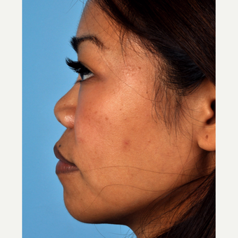 35-44 year old woman treated with Rhinoplasty before 3815656