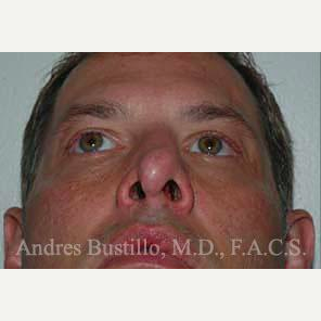 38 year old man treated with Revision Rhinoplasty before 3460803