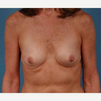 53 year old woman treated with Breast Augmentation before 3432281