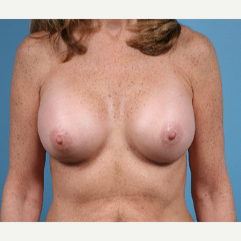 53 year old woman treated with Breast Augmentation after 3432281