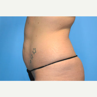 25-34 year old woman treated with Tummy Tuck before 3741584