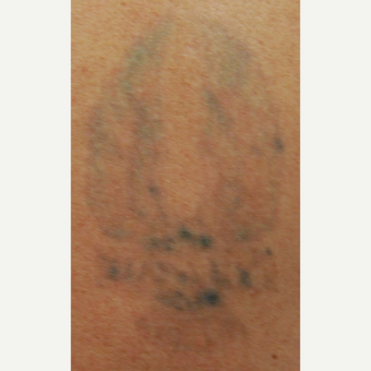 45-54 year old man with PicoSure Laser Tattoo Removal after 3149658