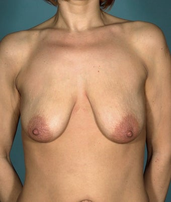 45 year old patient looking to improve breast appearance before 1249517