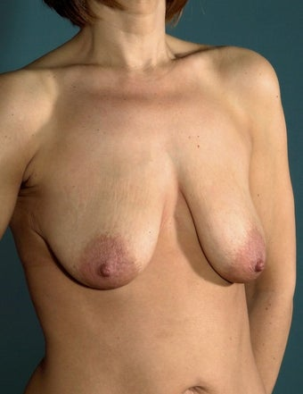 45 year old patient looking to improve breast appearance 1249517