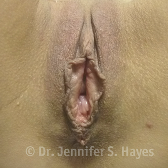 35-44 year old woman treated with Labiaplasty before 3494778