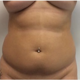 18-24 year old woman treated with Liposuction before 3658019