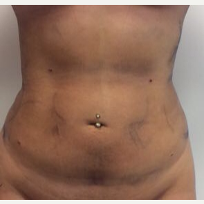 18-24 year old woman treated with Liposuction after 3658019