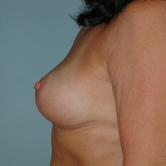 Breast Lift after 2236107
