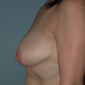 Breast Lift before 2236107