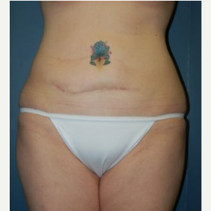 Tummy Tuck before 3720542