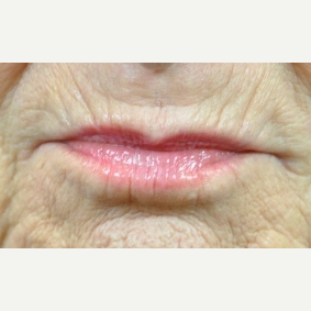 55-64 year old woman treated with Volbella before 3615842
