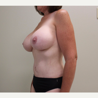45-54 year old woman treated with Mommy Makeover after 3445813