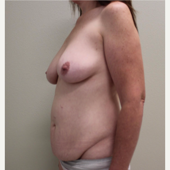 45-54 year old woman treated with Mommy Makeover before 3445813