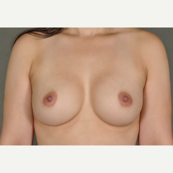 25-34 year old woman treated with Breast Augmentation after 3219250
