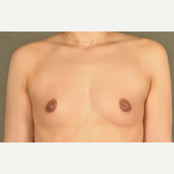 25-34 year old woman treated with Breast Augmentation before 3219250