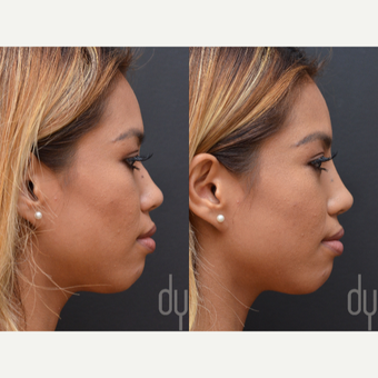 Non Surgical Nose Job before 3622628