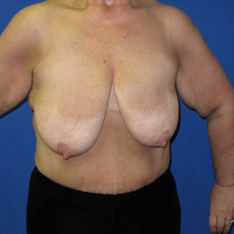 55-64 year old woman treated with Breast Lift before 1969151