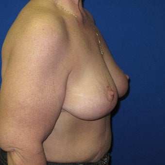 55-64 year old woman treated with Breast Lift 1969151