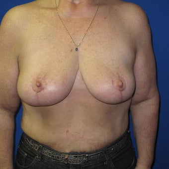 55-64 year old woman treated with Breast Lift after 1969151