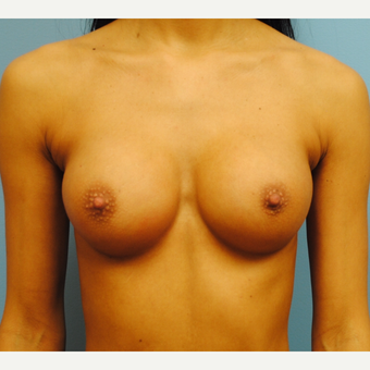 27 year old.  Breast augmentation. A to full B cup.  300 cc high profile silicone. after 3304338