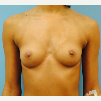 27 year old.  Breast augmentation. A to full B cup.  300 cc high profile silicone. before 3304338