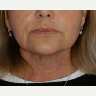 55-64 year old woman treated with Neck Lift after 3619255