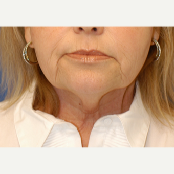 55-64 year old woman treated with Neck Lift before 3619255