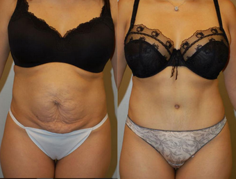 Tummy Tuck before 1182848