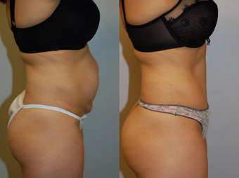 Tummy Tuck after 1182848