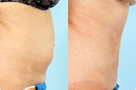 Smart Lipo: Abdomen before 989035