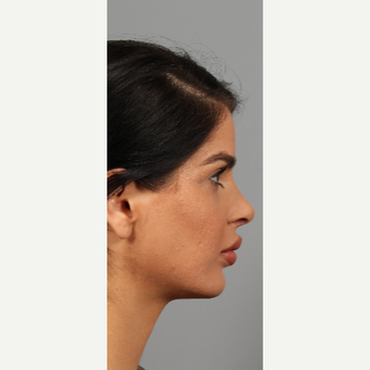 25-34 year old woman treated with Chin Implant after 3287126