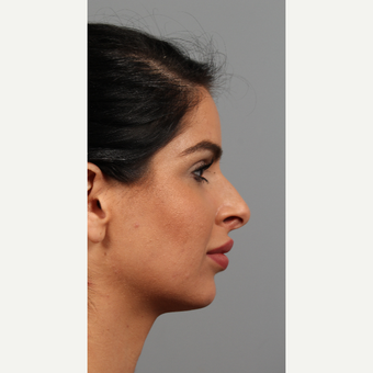 25-34 year old woman treated with Chin Implant before 3287126