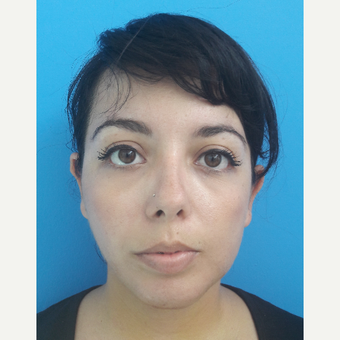 18-24 year old woman treated with Chin Implant after 3009512