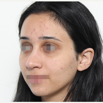 18-24 year old woman treated with Rhinoplasty after 3406553