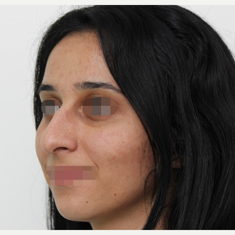 18-24 year old woman treated with Rhinoplasty before 3406553