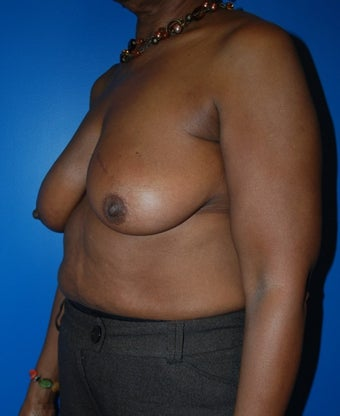 Breast Reconstruction with DIEP flap 1181664