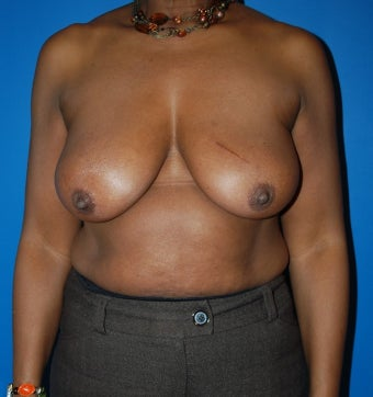 Breast Reconstruction with DIEP flap after 1181664