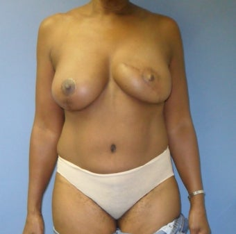 Breast Reconstruction with DIEP flap before 1181664