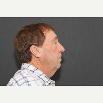 55-64 year old man treated with Facelift before 2994655