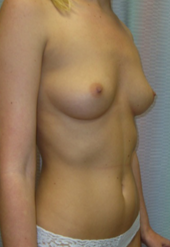25-34 year old woman treated for Breast Augmentation 1528541