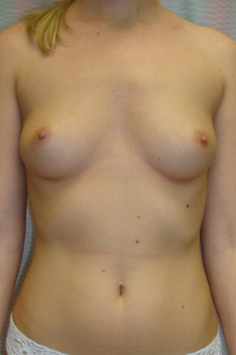25-34 year old woman treated for Breast Augmentation before 1528541