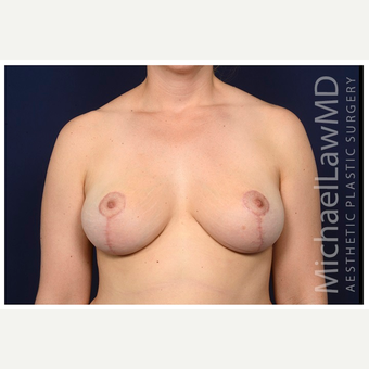 35-44 year old woman treated with Breast Lift after 3103616