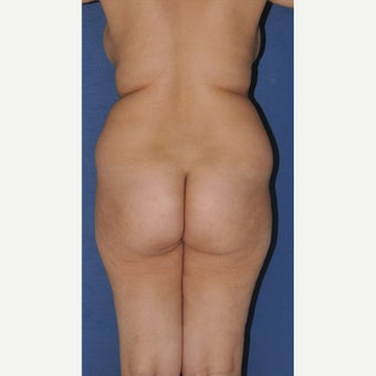 45-54 year old woman treated with Brazilian Butt Lift before 2247962