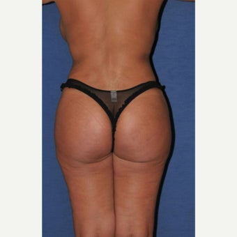 45-54 year old woman treated with Brazilian Butt Lift after 2247962
