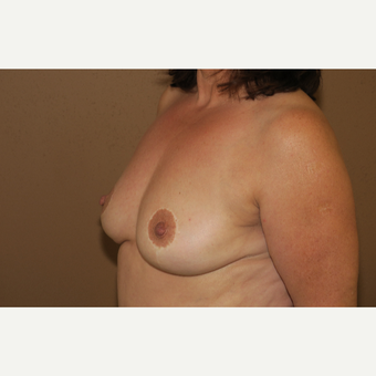 45-54 year old woman treated with Breast Reduction after 3388723