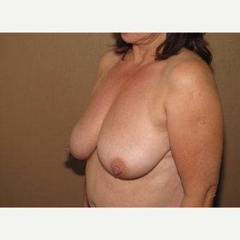 45-54 year old woman treated with Breast Reduction before 3388723