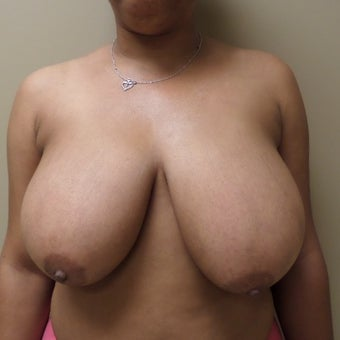 35-44 year old woman treated with Breast Reduction before 2497487