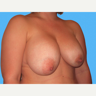 Breast Implant Removal before 3809820